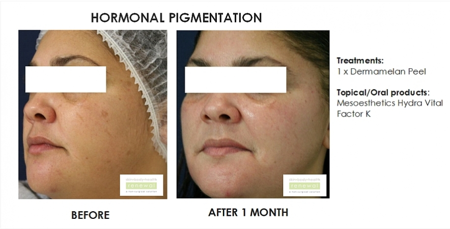 before and after,before, after,hormonal pigmentation, pigmentation, dermamelan, peel, chemical peel, dark spots, hydra vital factor k