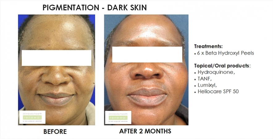 before and after, before, after,pigmentation,dark skin,black skin, dark spots, blemishes, beta hydroxy peel, chemical peel,