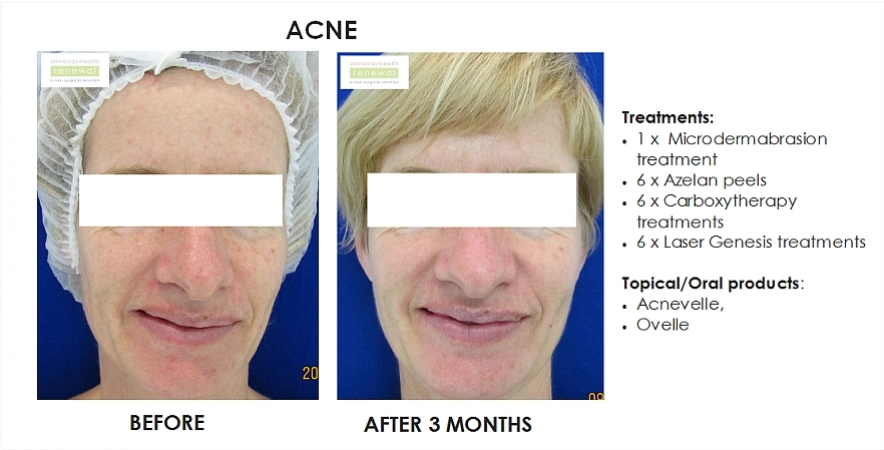 before and after, before, after,Pigmentation,Acne,dark spots, spots, breakouts, blemishes, Microdermabrasion,Azelan peel,chemical peel,Carboxytherapy,Laser Genesis, acnevelle, Ovelle
