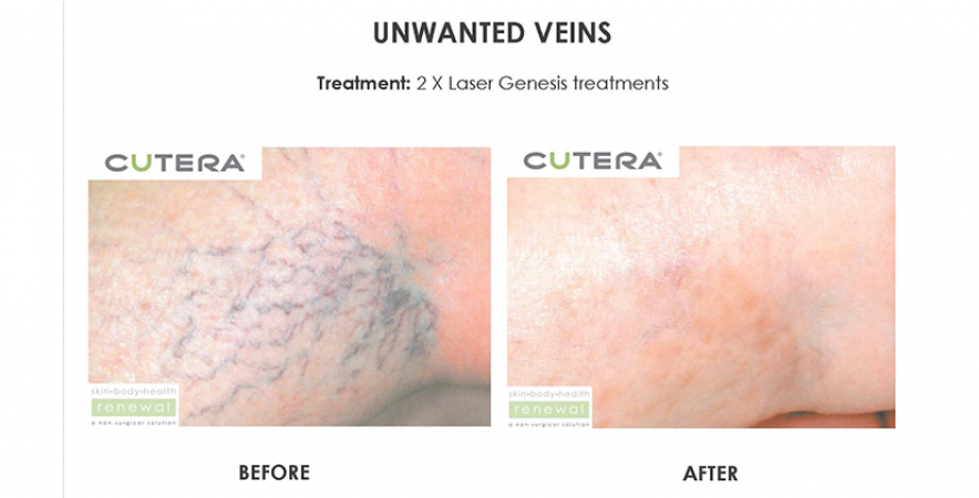 Unwanted vein removal 2 x laser genesis treatments before after cutera skin body health renewal