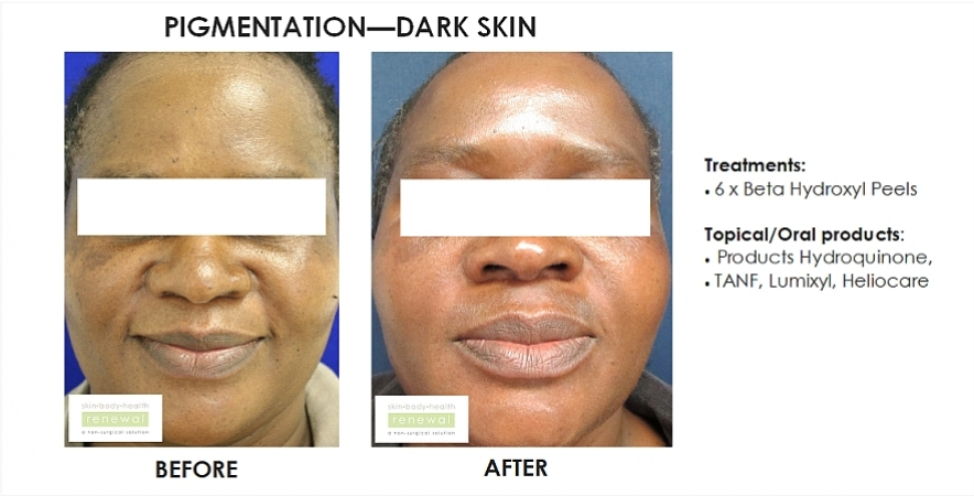 before and after, before, after,pigmentation,dark skin,black skin, dark spots, blemishes, beta hydroxy peel, chemical peel, hydroquinone,TANF,lumixyl,heliocare