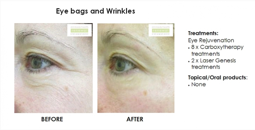 before and after, before, after,eye bags, under eye bags, carboxytherapy, laser genesis, laser, wrinkles, eye wrinkles