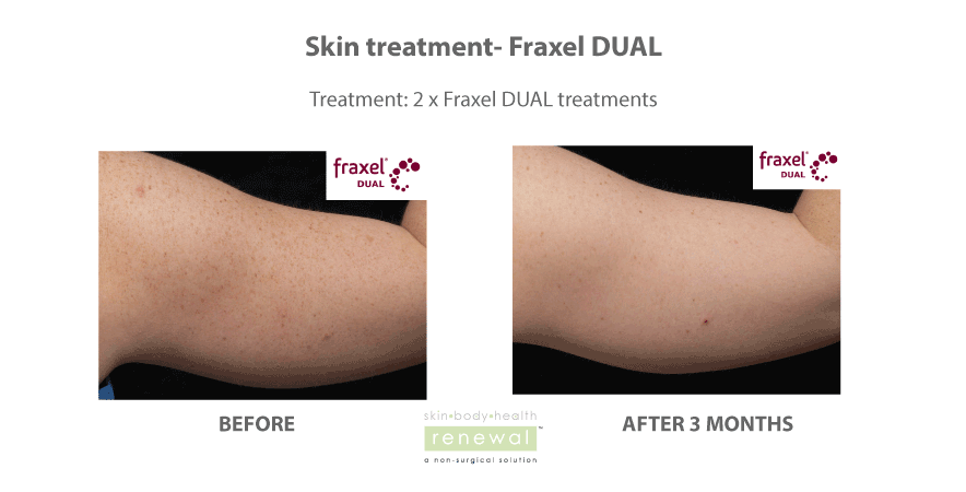 Fraxel DUAL arms treatment for sun damage