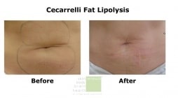 Cecarelli-before after stomach