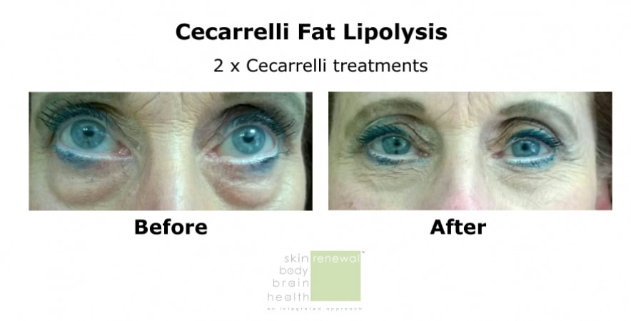 Cecarelli-before after eyes