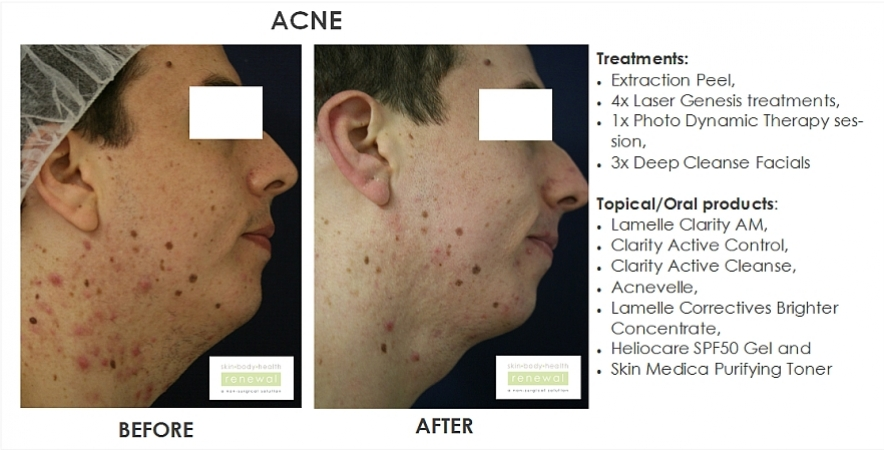 before and after,before, after,acne, extraction peel, spots, laser genesis, laser, chemical peel, pdt, deep cleanse, facial,lamelle,clarity, acnevelle, correctives, heliocare gel suncreen