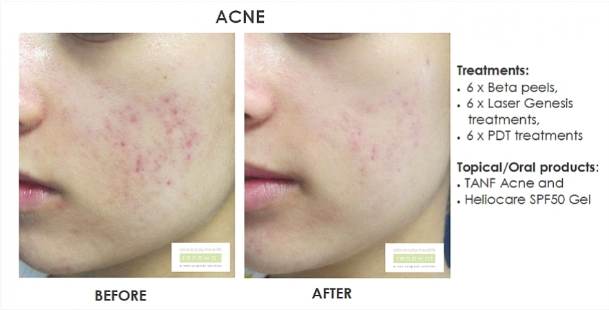 before and after,before, after,acne, breakouts,spots, beta peel, chemical peel,laser, laser genesis, lamelle