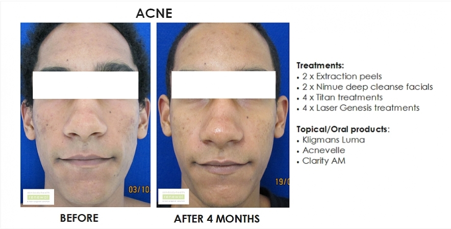 before and after, before, after,acne,spots, breakouts,extraction peel, nimue, deep cleanse facial, laser, laser genesis, kligmans luma, acnevelle, lamelle, clarity