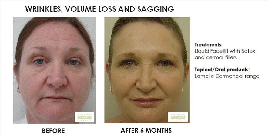 before and after, before, after,Wrinkles, ageing face,Volume loss,Sagging,Liquid facelift, Botox,dermal fillers,Lamelle,Dermaheal