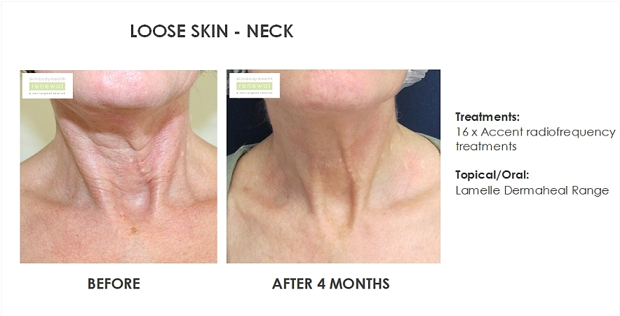 Loose skin - accent x 16 neck dermaheal range before  after