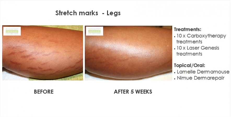 before,after,treatment,stretchmarks,carboxytherapy,laser, laser genesis,dermamouse,skin needling,nimue,darma repair,legs