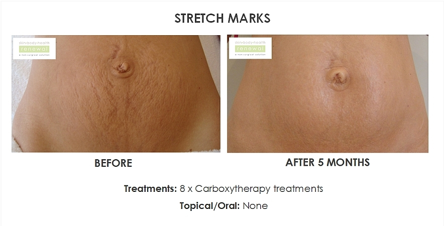 before,after,treatment,stretchmarks,carboxy, tummy, abdomen