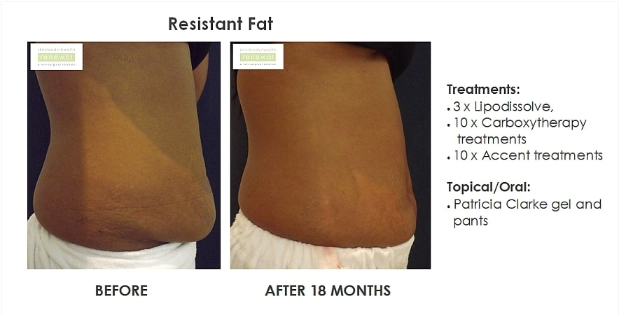 before,after,treatment,resistant fat,tummy fat, belly fat, lovehandles,bra bulges,ilipo,carboxytherapy,accent,lipodissolve,cellulite gel,weight,body