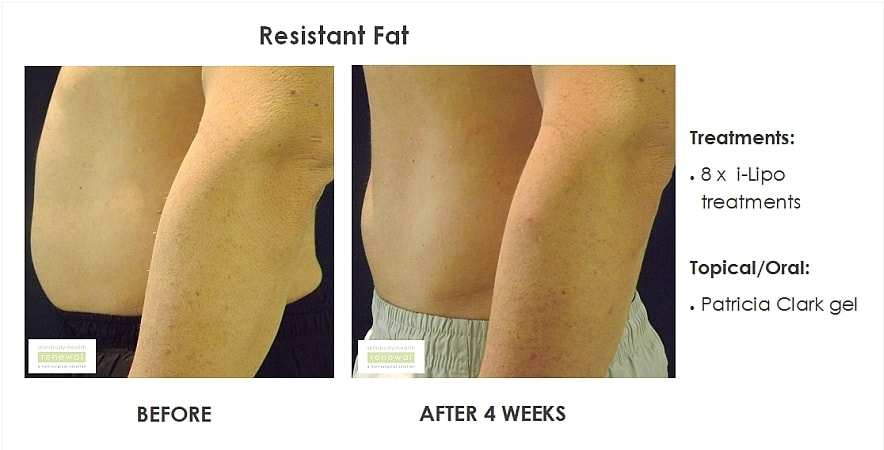 before,after,treatment,resistant fat,tummy fat, belly fat, lovehandles,bra bulges,ilipo,cellulite gel,weight,body