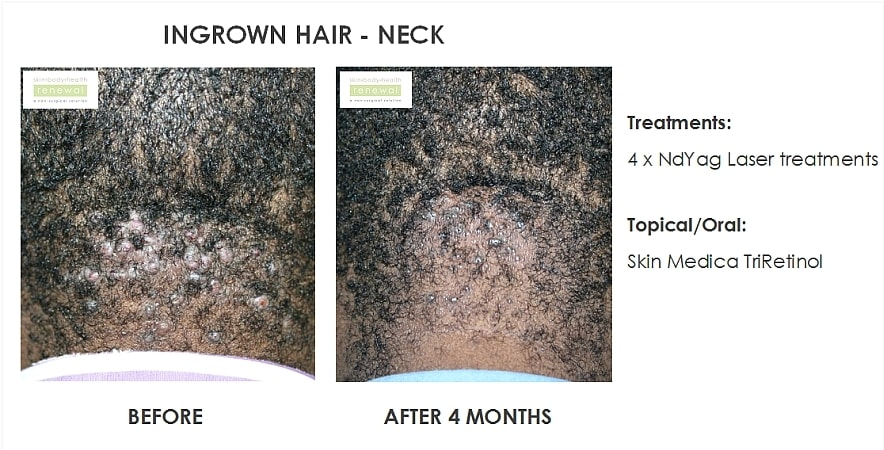 before,after,treatment,ingrown hair,neck,hair,laser,skin medica,tri-retinol,retinol