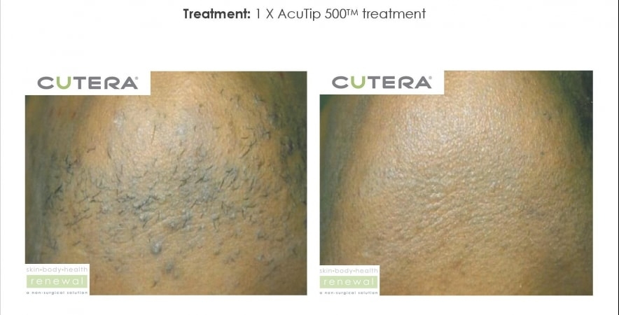 Ingrown or unwanted hair removal coolglide cv before after 6 weeks cutera skin body health renewal