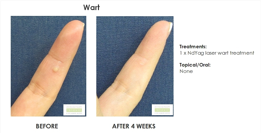 Wart - 1 x ndyag laser wart treatment - 4 weeks before and after