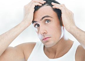 Hair loss article