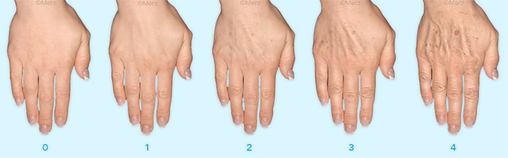 ageing process of our hands fillers