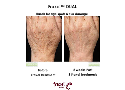 Fraxel stretch marks before and after