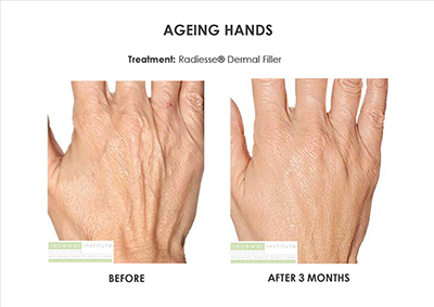 Fraxel hands before and after