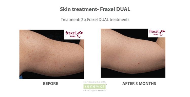 Fraxel skin treatment before and after