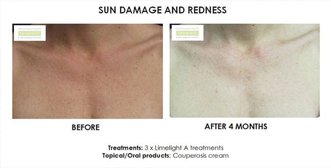 Fraxel sun damage redness before and after